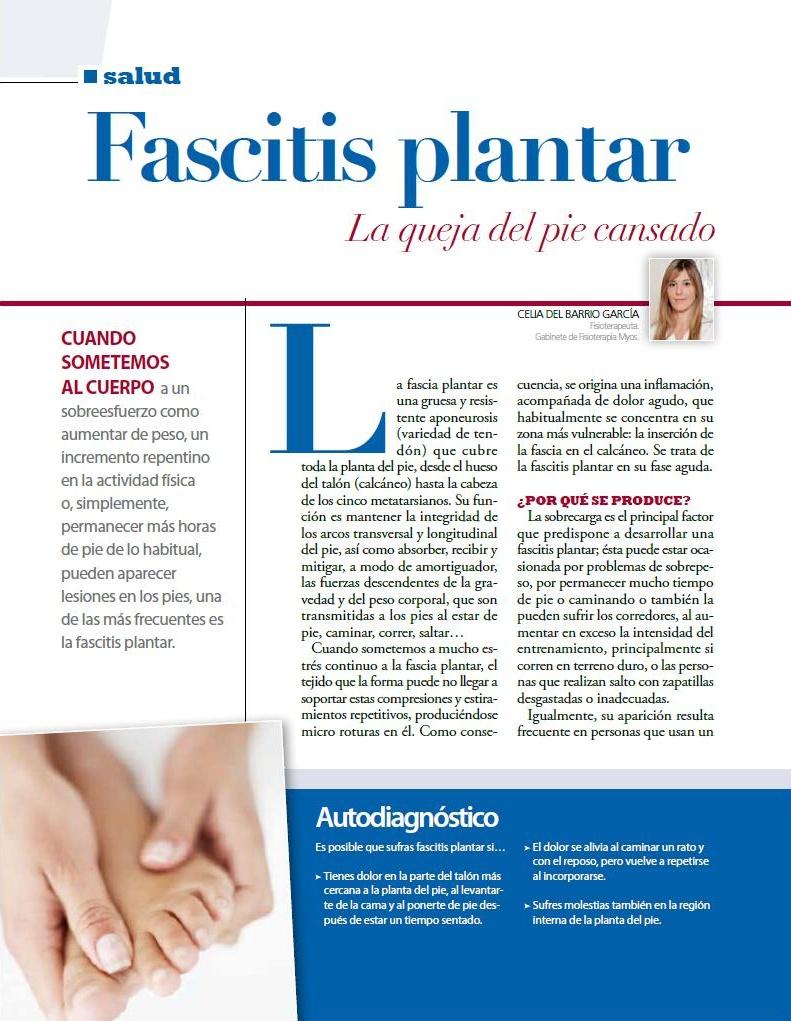 FASCITIS   PLANTAR.  Revista Vivir Sano a partir de los 50.