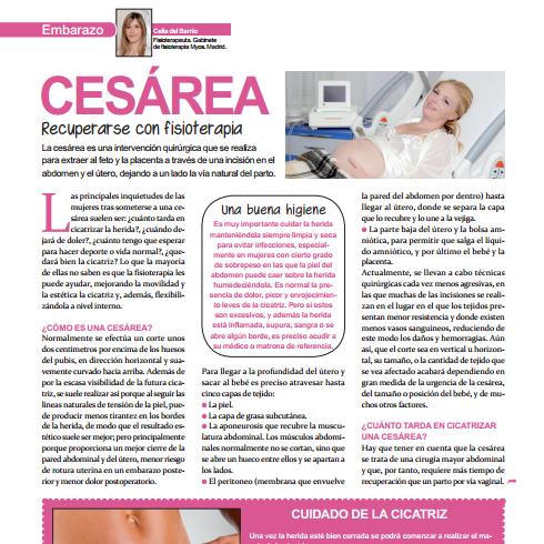 Tratamiento de fisioterapia para la cicatriz de la cesárea.
